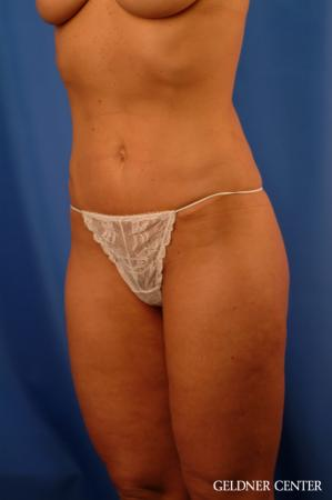 Tummy Tuck: Patient 15 - After Image 5