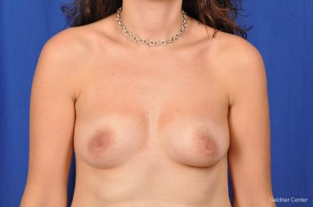 Breast Augmentation Streeterville, Chicago 2370 - Before Image 1