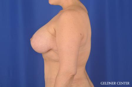 Breast Augmentation: Patient 161 - After Image 4