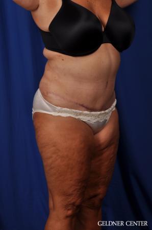 Lipoabdominoplasty: Patient 4 - After Image 2