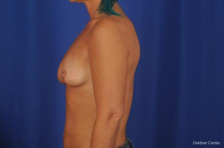 Chicago Complex Breast Augmentation 2336 - Before Image 4