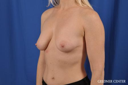 Breast Augmentation: Patient 83 - Before and After Image 4