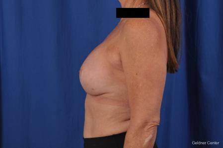 Breast Augmentation: Patient 153 - After Image 4