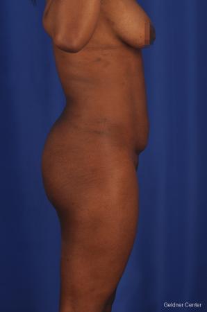 Liposuction: Patient 3 - Before Image 3