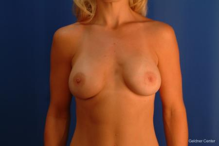 Breast Augmentation Lake Shore Dr, Chicago 2350 -  After Image 1