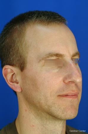 Rhinoplasty For Men: Patient 1 - Before Image 2