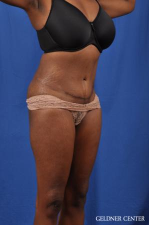Abdominoplasty: Patient 6 - After Image 2