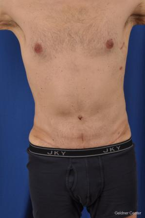 Abdominoplasty-for-men: Patient 2 - After Image