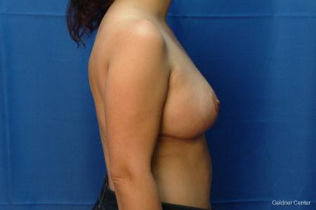 Chicago Breast Reduction 2416 -  After Image 2