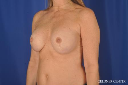 Complex Breast Augmentation: Patient 36 - After 4