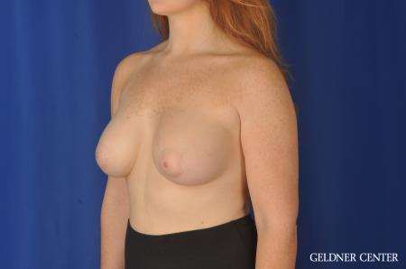 Breast Augmentation Streeterville, Chicago 11870 -  After Image 4