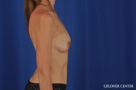 Chicago Breast Augmentation 4002 - Before Image 2