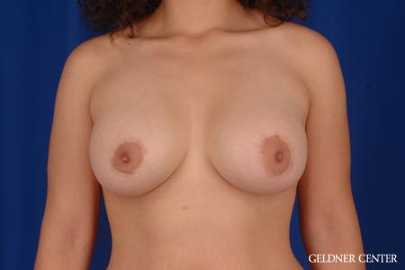 Breast Lift: Patient 28 - After Image 1