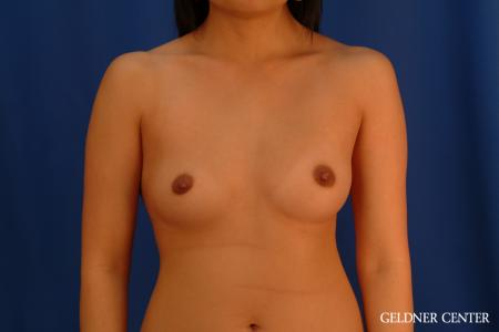 Breast Augmentation: Patient 163 - Before Image 1