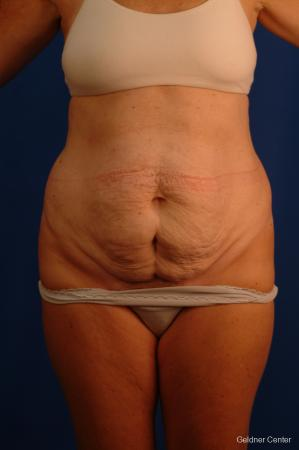 Tummy Tuck: Patient 12 - Before Image