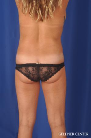 Liposuction: Patient 39 - After Image 4