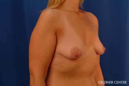Breast Augmentation: Patient 164 - Before Image 2