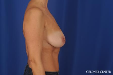 Breast Lift: Patient 48 - Before Image 3