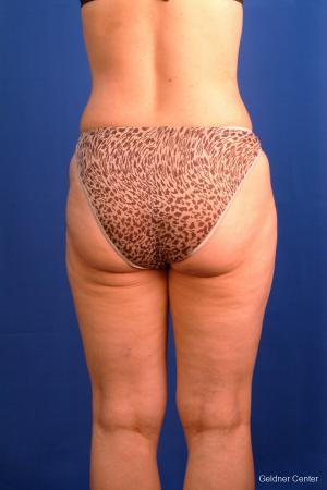Liposuction: Patient 9 - After Image 5