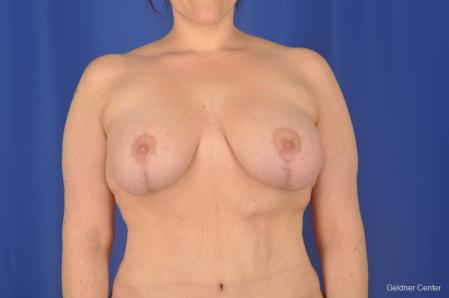 Breast Lift: Patient 18 - After Image 1