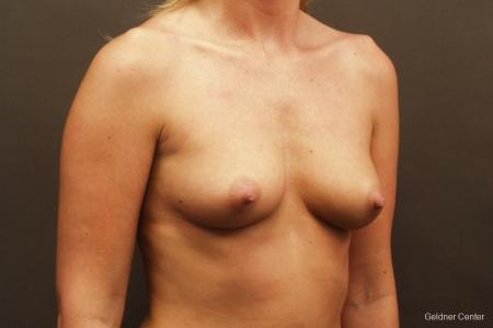 Breast Augmentation Streeterville, Chicago 2425 - Before Image 3