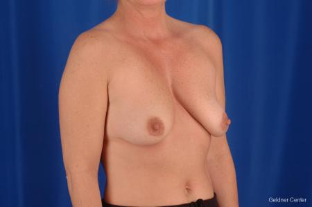 Breast Lift Lake Shore Dr, Chicago 2308 - Before Image 3