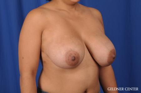 Breast Reduction: Patient 23 - Before Image 3