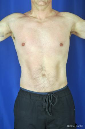 Liposuction-for-men: Patient 9 - After Image