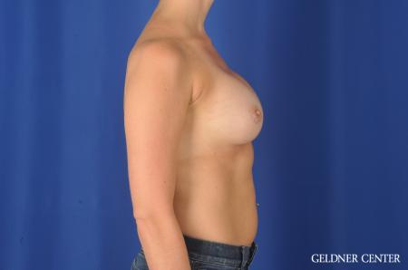 Chicago Breast Augmentation 11868 -  After Image 3