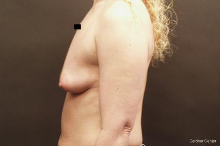 Breast Augmentation Lake Shore Dr, Chicago 2436 - Before Image 4