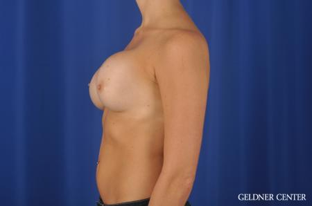 Chicago Breast Augmentation 11868 - Before and After Image 4
