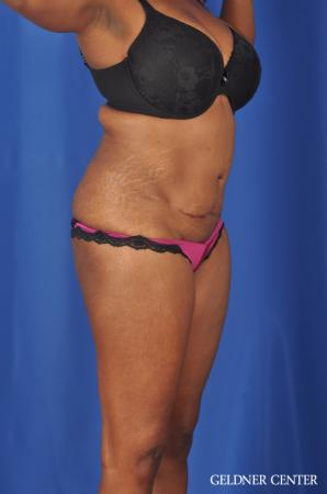 Abdominoplasty: Patient 6 - Before Image 2
