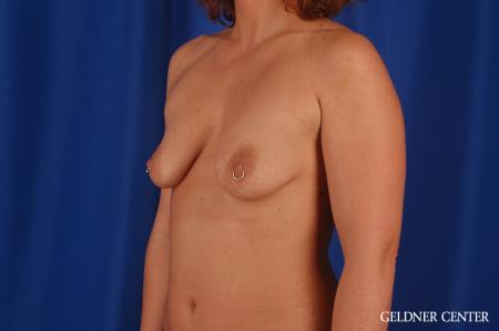 Breast Augmentation: Patient 171 - Before and After Image 4
