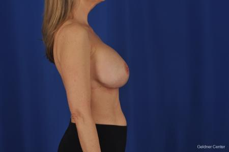 Breast Augmentation Streeterville, Chicago 2388 -  After Image 3
