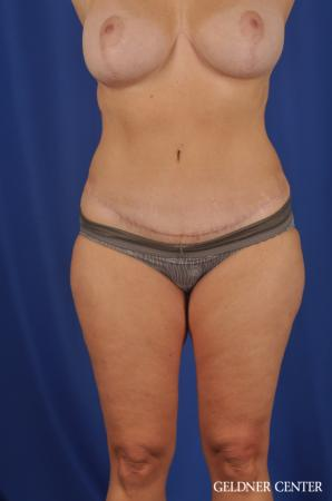Lipoabdominoplasty: Patient 6 - After Image 1