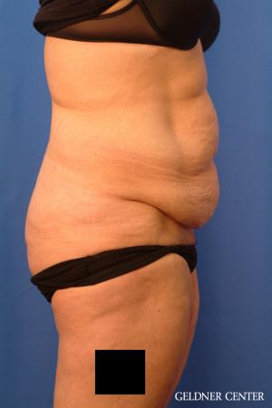 Tummy Tuck: Patient 19 - Before Image 3
