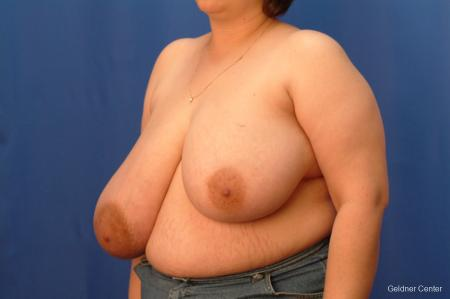 Breast Reduction Streeterville, Chicago 2522 - Before and After Image 4