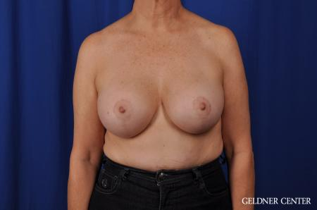 Chicago Breast Augmentation 4285 -  After Image 1