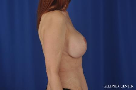 Complex Breast Augmentation: Patient 37 - After Image 3