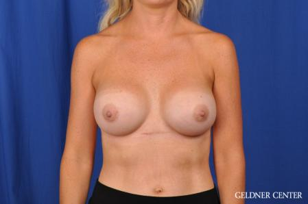 Breast Augmentation: Patient 186 - After Image 1