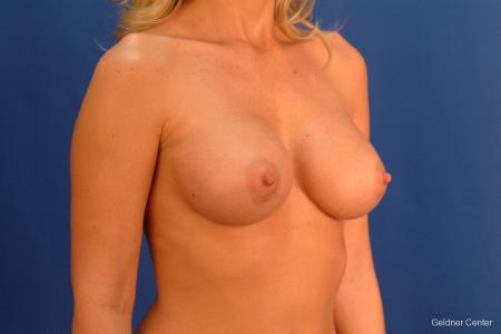 Breast Augmentation Streeterville, Chicago 2425 -  After Image 3