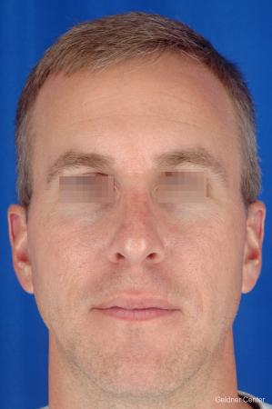 Rhinoplasty For Men: Patient 1 - After Image 1
