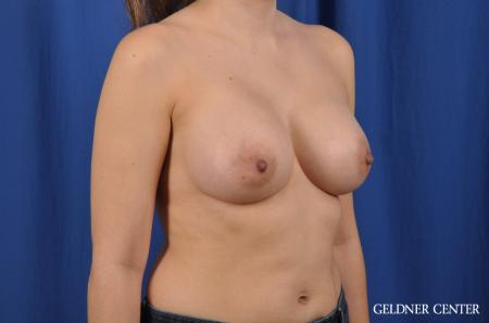 Breast Augmentation: Patient 144 - After Image 3