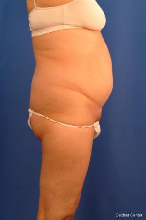 Vaser lipo patient 2536 before and after photos - Before Image 2