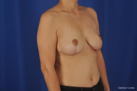 Chicago Breast Reduction 2068 -  After Image 2