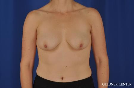 Breast Augmentation Streeterville, Chicago 4288 - Before Image 1