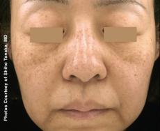Laser: Patient 4 - Before Image