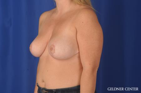 Chicago Breast Reduction 11855 -  After Image 4