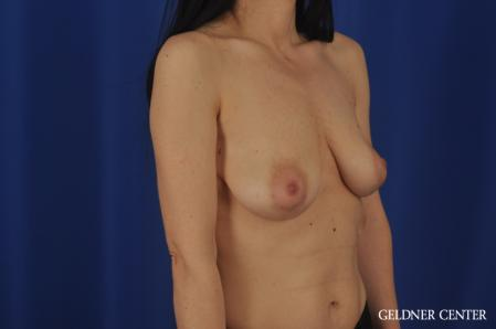 Breast Lift: Patient 52 - Before Image 2