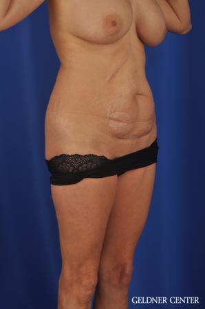 Liposuction: Patient 37 - Before Image 2
